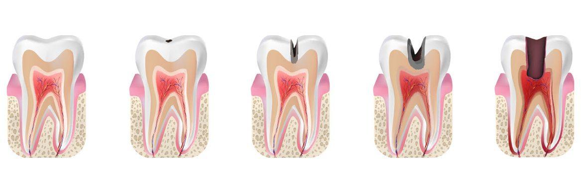 Kariesentwicklung Zahnarzt Aal Wipperfürth Dentaal