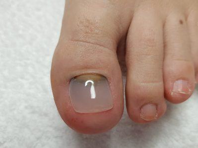 Fertige Nagelprothese mit Versiegelung