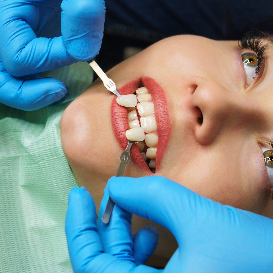 Zahnbleaching und Zahnaufhellung